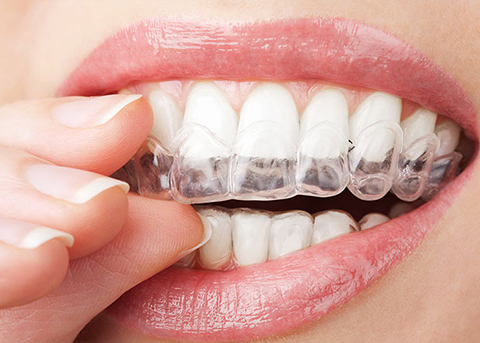 Get Effective Protection for Teeth Grinding in Charlotte