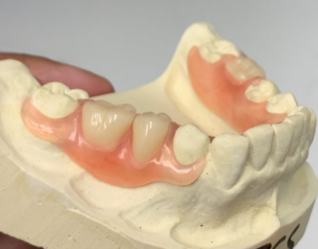 Flex Partial Dentures in Charlotte Park Road