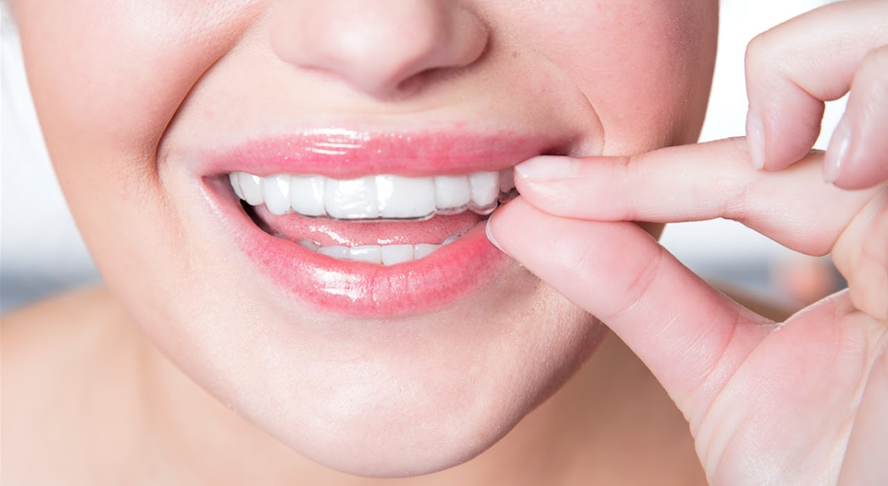 SureSmile vs. Invisalign - Which Aligner Should You Get?