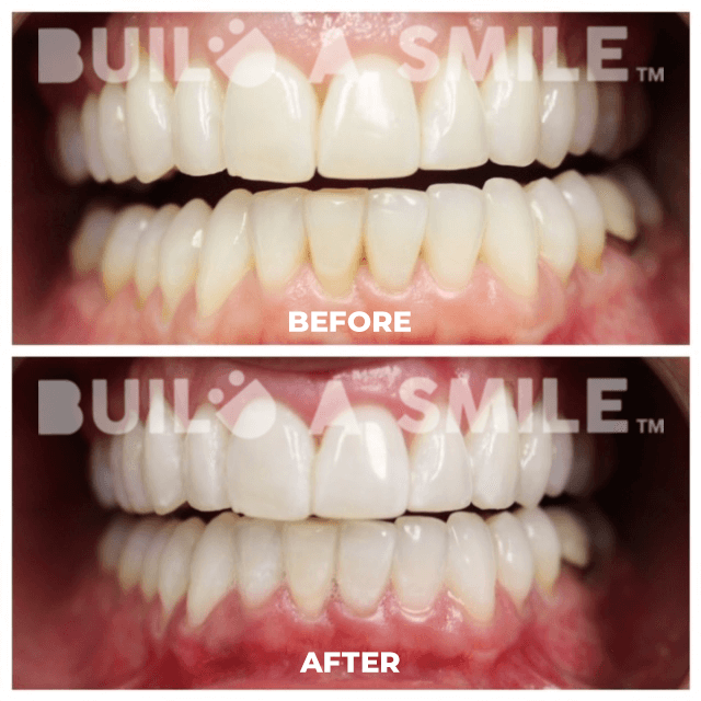 before and after teeth whitening charlotte nc