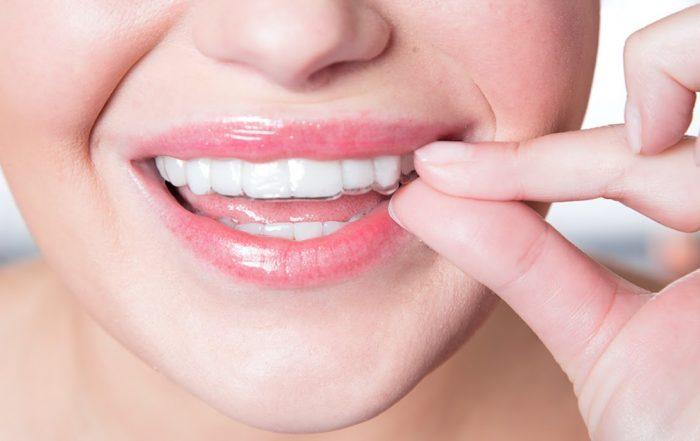 suresmile vs smile direct aligners