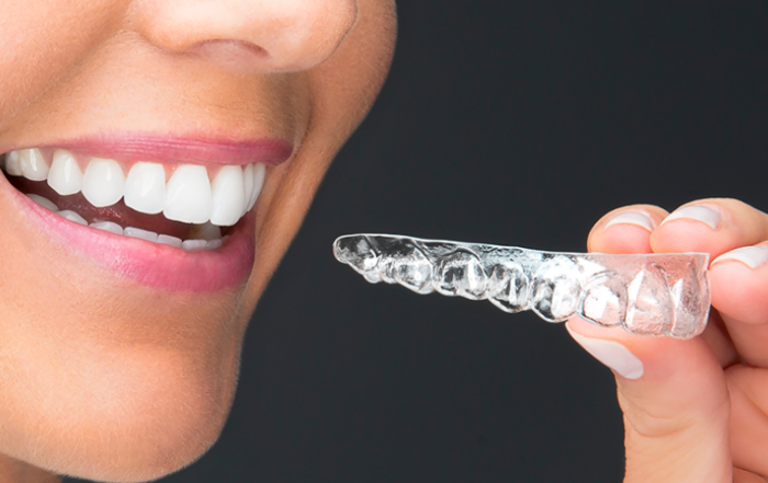 can i get SureSmile clear aligners after wearing braces