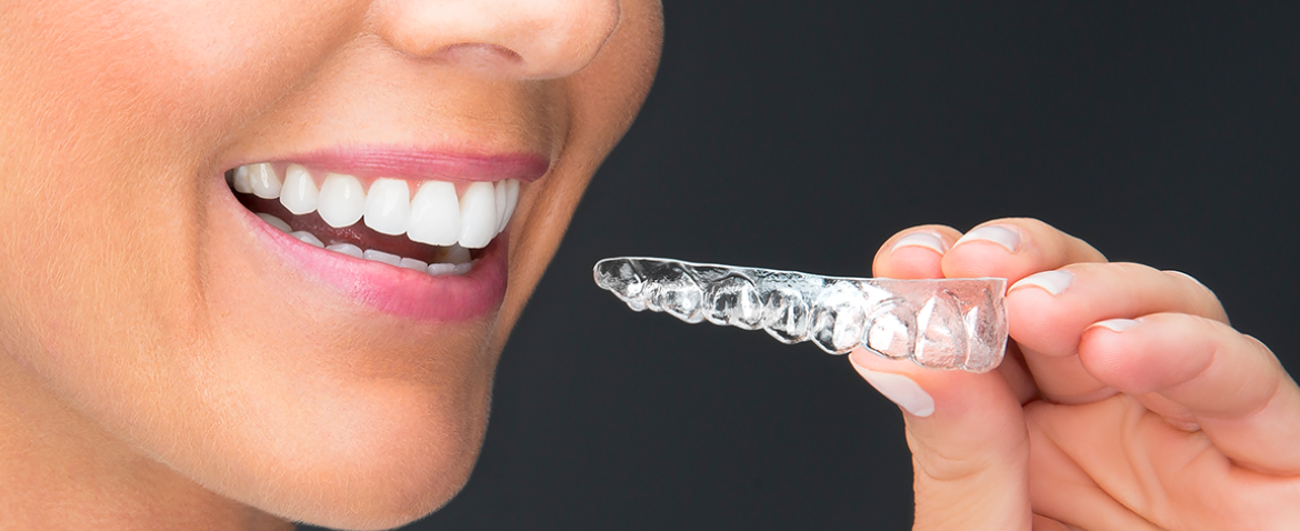 Clear Aligners: Can I get SureSmile after braces?