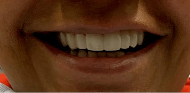 partial dentures in Charlotte