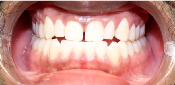 before and after smile makeover in Charlotte NC