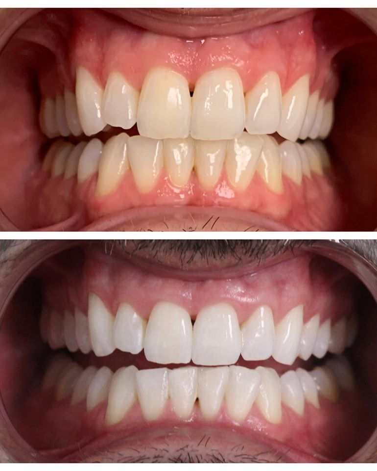 Before and After of Nick Kosir's teeth whitening treatment at Build-A-Smile