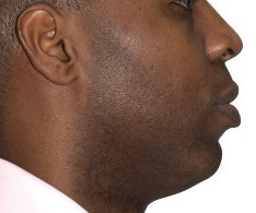 side profile after clear aligner treatment