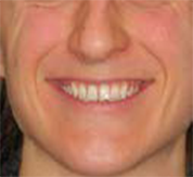 front with smile before clear aligners