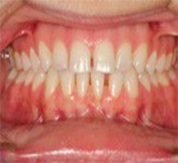 frontal before SureSmile clear aligners