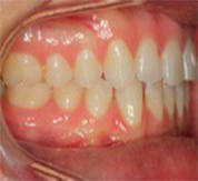 right buccal before clear aligners