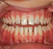 frontal before clear aligners treatment