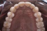 upper occlusal after SureSmile clear aligner treatment