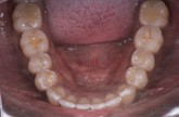 lower occlusal after SureSmile treatment