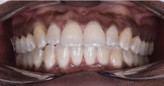 frontal after adult clear aligners