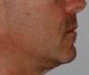 side profile after suresmile clear aligner treatment