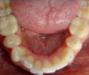 lower occlusal before SureSmile treatment