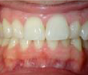frontal before clear aligners