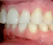 left buccal before clear aligners