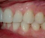 left buccal after clear aligners for adults