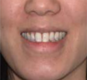 front with smile before cheap clear aligners