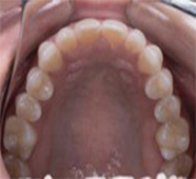 upper occlusal after treatment