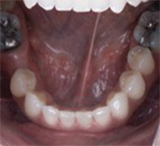 lower occlusal after treatment