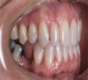 right buccal after clear aligners for adults