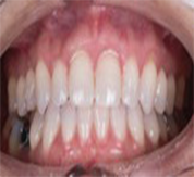 frontal after clear aligners treatment for adults
