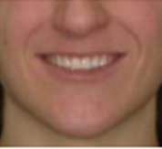 front with smile after clear aligner treatment