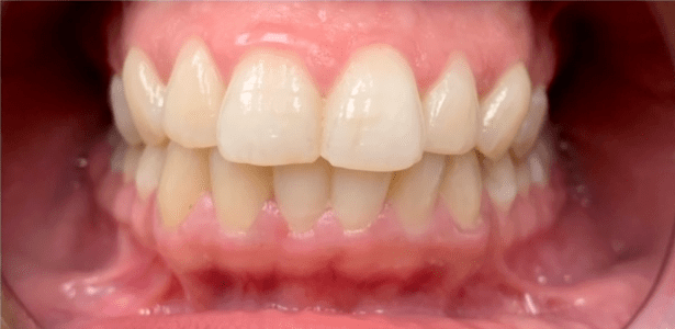 before and after teeth whitening in Charlotte