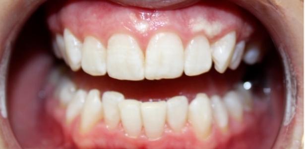 teeth whitening Charlotte