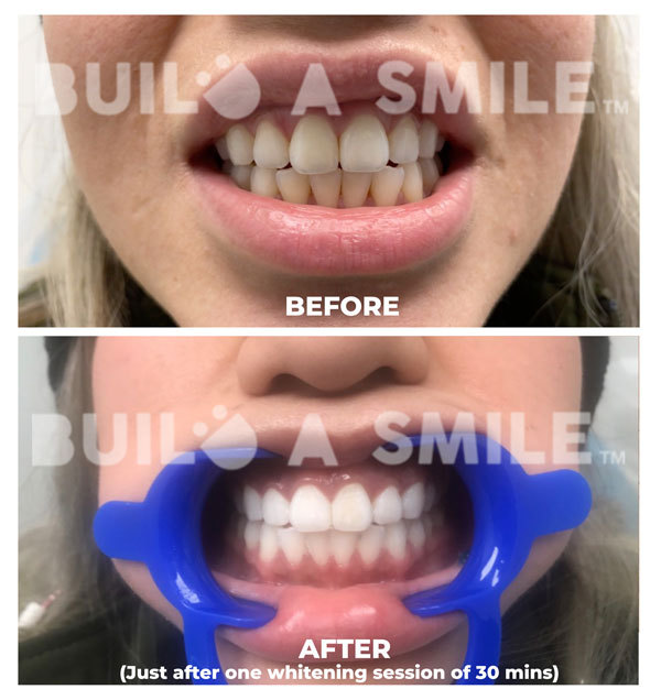 Before and after professional teeth whitening treatment in Charlotte