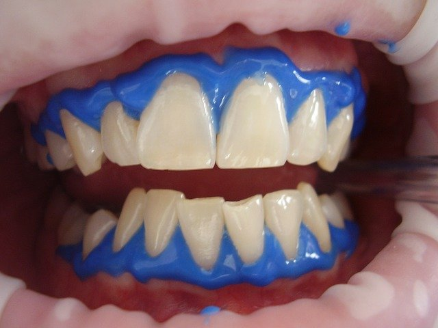 Protective gel placed on gums to protect them from hydrogen peroxide