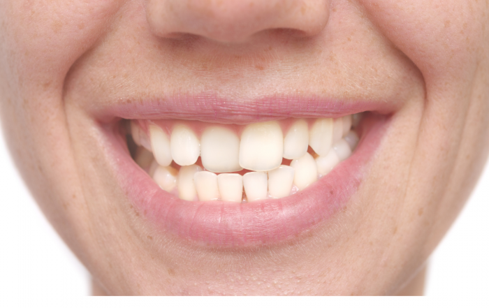 Why Do Teeth Shift After Braces?